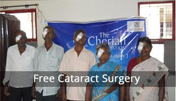 Free-Cataract-Surgery